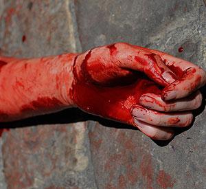 Рука в крові фото 728-223
