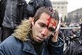 Пострадавший в результате беспорядков в Харькове.