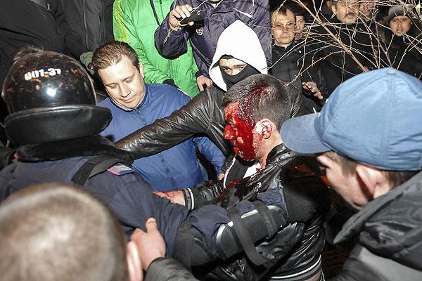 Окровавленного мужчину ведут к месту оказания первой помощи.