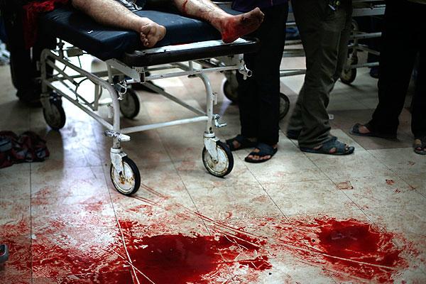 Госпиталь в Газе.