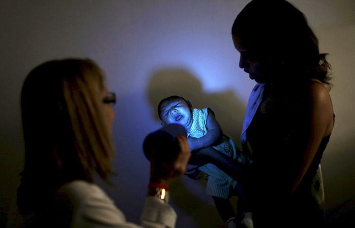 Заражение вирусом Зика во время беременности может грозить младенцу микроцефалией. В связи с этим у детей могут быть нарушения слуха, зрения, умственная и физическая отсталость. Ребенок рождается с маленькой головой и недоразвитым мозгом, что часто приводит к его гибели. В Бразилии подтвердили около 400 случаев микроцефалии у младенцев, родившихся в последние месяцы. Родители еще более 3000 младенцев ждут подтверждения диагноза.