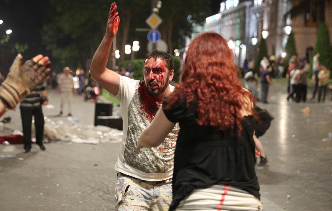 Раненный в голову мужчина недоволен действиями полиции