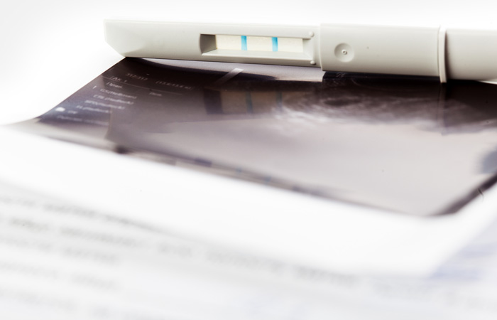 Федеральная комиссия отклонила идею исключения абортов из системы ОМС