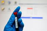 ИААФ решила перепроверить допинг-пробы россиян с 2007 по 2013 годы