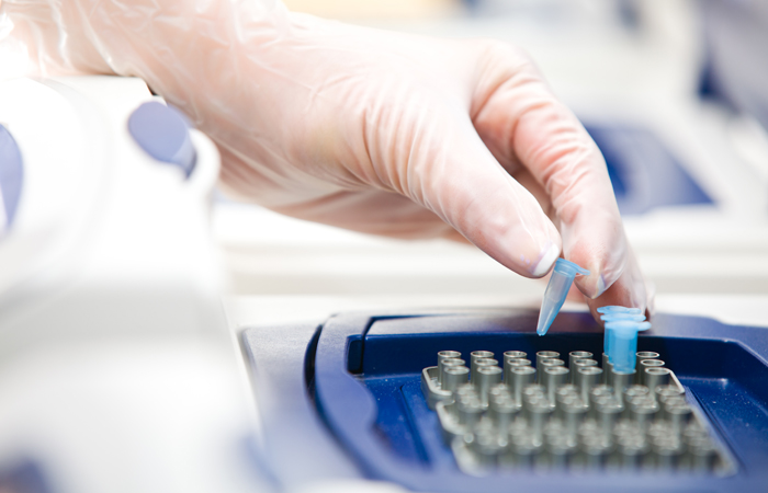МВД желает получать образцы ДНК подозреваемых иобвиняемых вовсех видах правонарушений