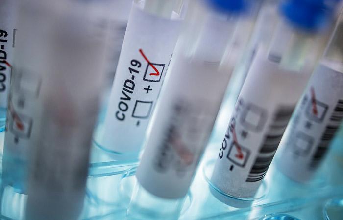 """ГНЦ """"Вектор"""" готов начать тестировать вакцину от COVID-19 на добровольцах уже в мае"""