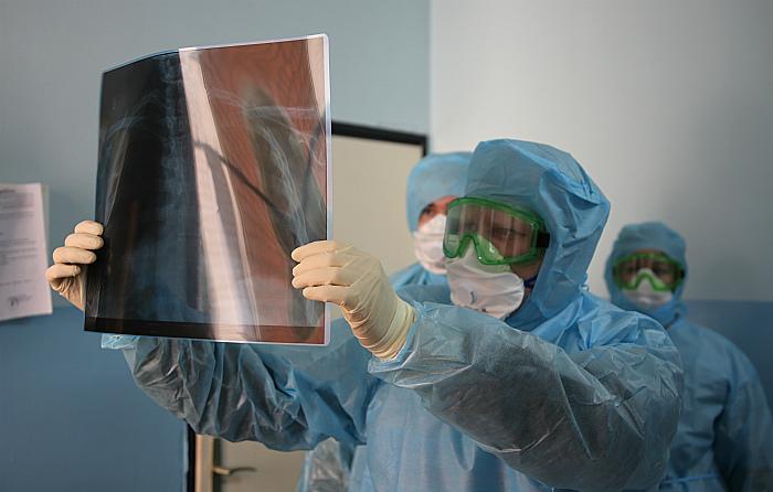 Число заболевших COVID-19 в РФ за сутки составило 1667 человек