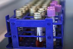 В смоленском доме престарелых коронавирус выявили у 33 человек