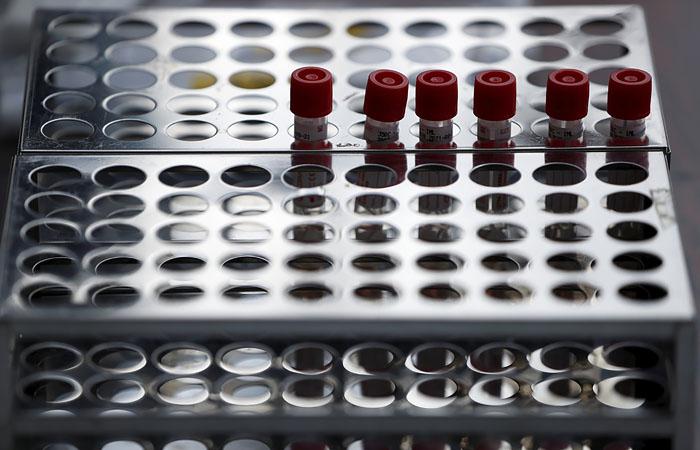 Число случаев коронавируса в России превысило 62 тысячи
