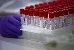 Вакцину от коронавируса ввели первым добровольцам в Москве