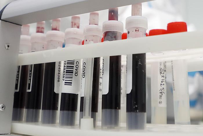 В России за сутки выявлено 16 550 случаев заражения коронавирусом