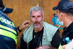 Почти 50 журналистов пострадали во время протестной акции в Тбилиси